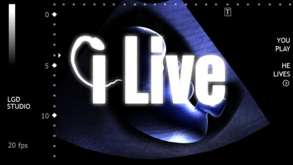 I live you play he lives-Info iDevice