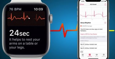 apple watch fonction ecg watchos